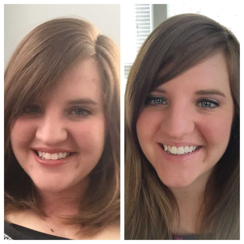 weight loss in face