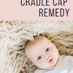 All Natural Cradle Cap Remedy